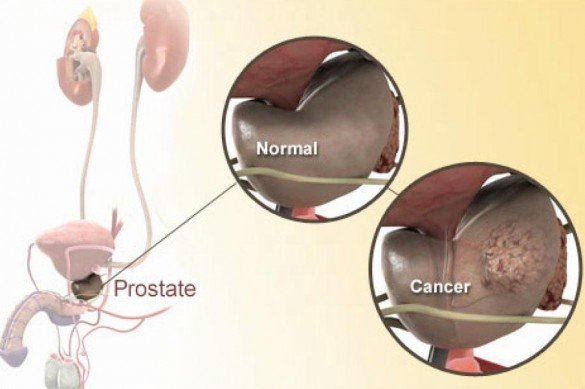 Normal vs. cancerous prostate