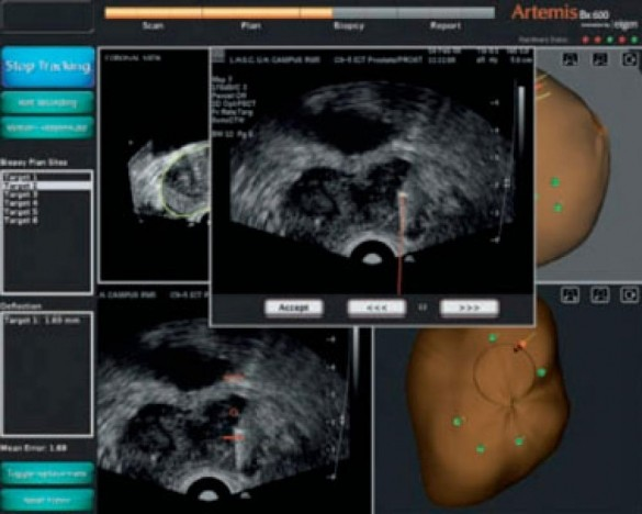 Mri Trus Fusion Biopsies Why Mri Trus Prostate Biopsy