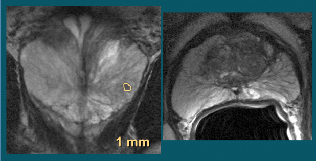 T2 weighted images show suspected tumor activity