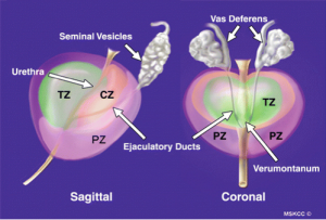 Zonal anatomy of a normal prostate gland
