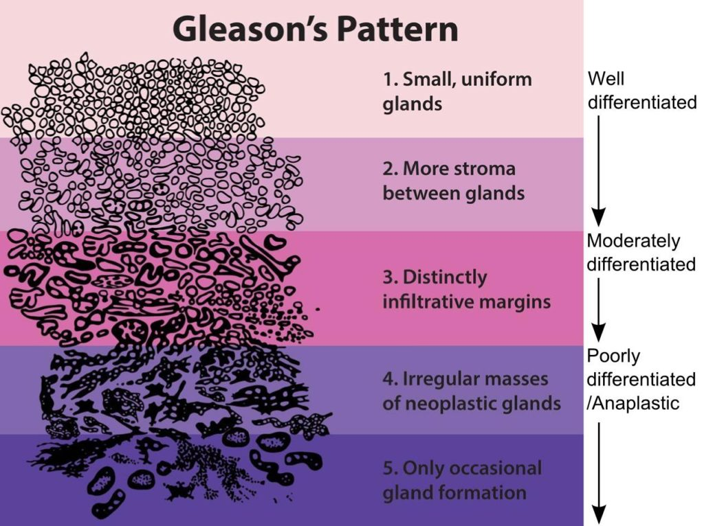 Gleason pattern - Sperling Prostate Center